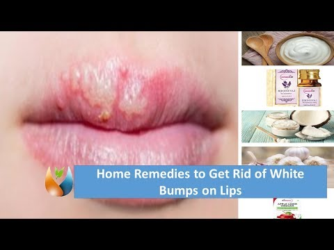 White Spots on Lips Medical Course