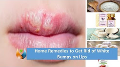 hqdefault - Cures For Pimples On Lips