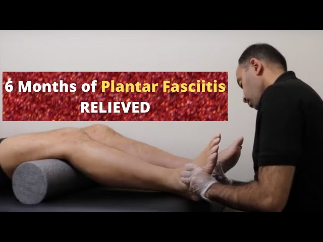 6 Months of Plantar Fasciitis Relieved In Minutes (REAL RESULTS!!!!)