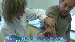 Psoriasis: una enfermedad de la piel