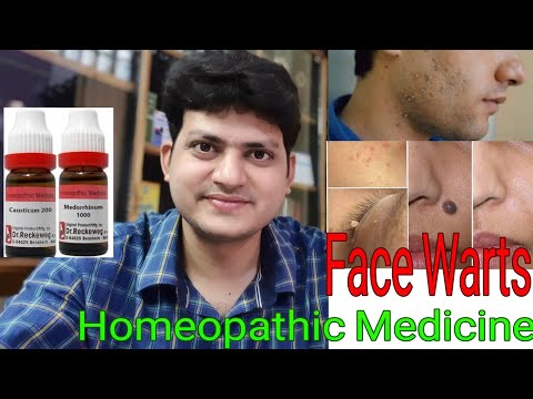 Milia! Homeopathic medicine for Milia? Milium Cyst! Explain! by