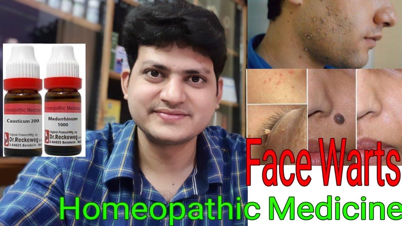 Facial black mole homeopath medicine remova pics 881