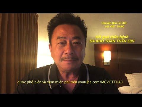 MC VIỆT THẢO- CBL (586)- KẾT QUẢ CHỮA BỆNH DA KHÔ TOÀN THÂN EBH– AUGUST 21,2017