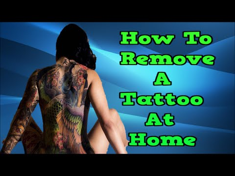 Laser tattoo removal how a tattoo is removed doovi for How to get rid of a tattoo at home
