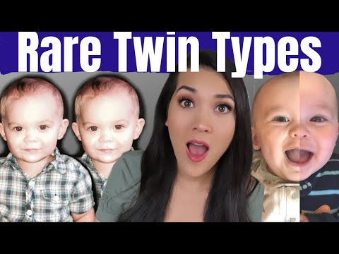 TYPES OF TWINS YOU'VE NEVER HEARD OF | Rare Twins | Semi-Identical, Different Fathers, Conjoined...