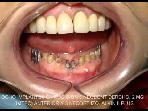 Resultado de imagen para protesis dental inferior con implantes