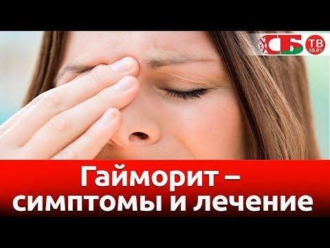 Как узнать симптомы гайморита