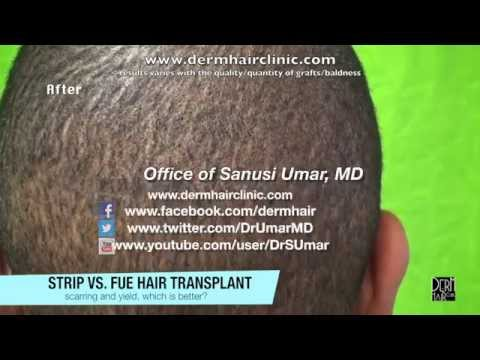 FUE Hair Surgery Results on Black Patient -- Info For Menlo Park Viewers