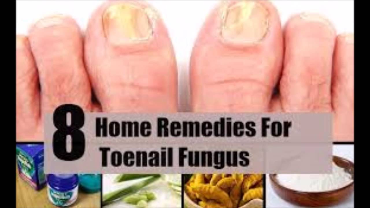 How Many Laser Treatments For Japanese Toenail Fungus Recurring