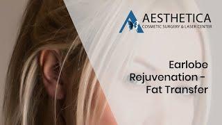 Earlobe Rejuvenation - Fat Transfer Technique - Dr Phillip Chang M.D. - #Loudoun #Virginia
