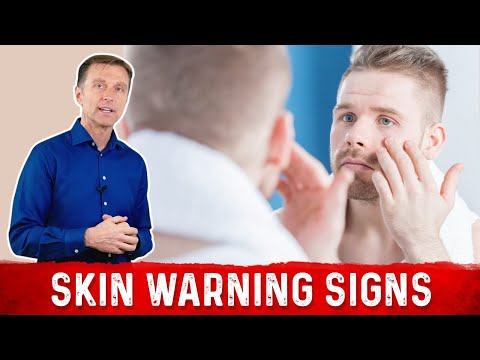 7 Skin Warning Signs of Diabetes