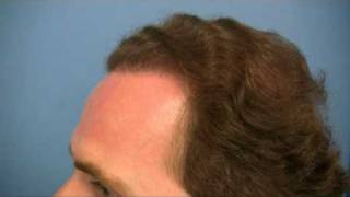 Hair Transplant by Dr Hasson - 4856 Grafts - 1 Session