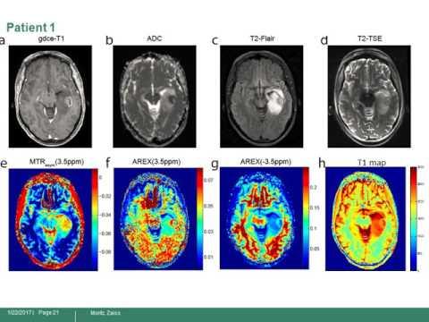 Moritz Zaiss: Downfield-NOE-suppressed amide-CEST-MRI at 7-Tesla