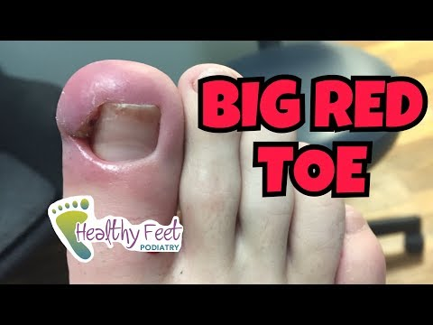Big Red Toe From Ingrown Nail!