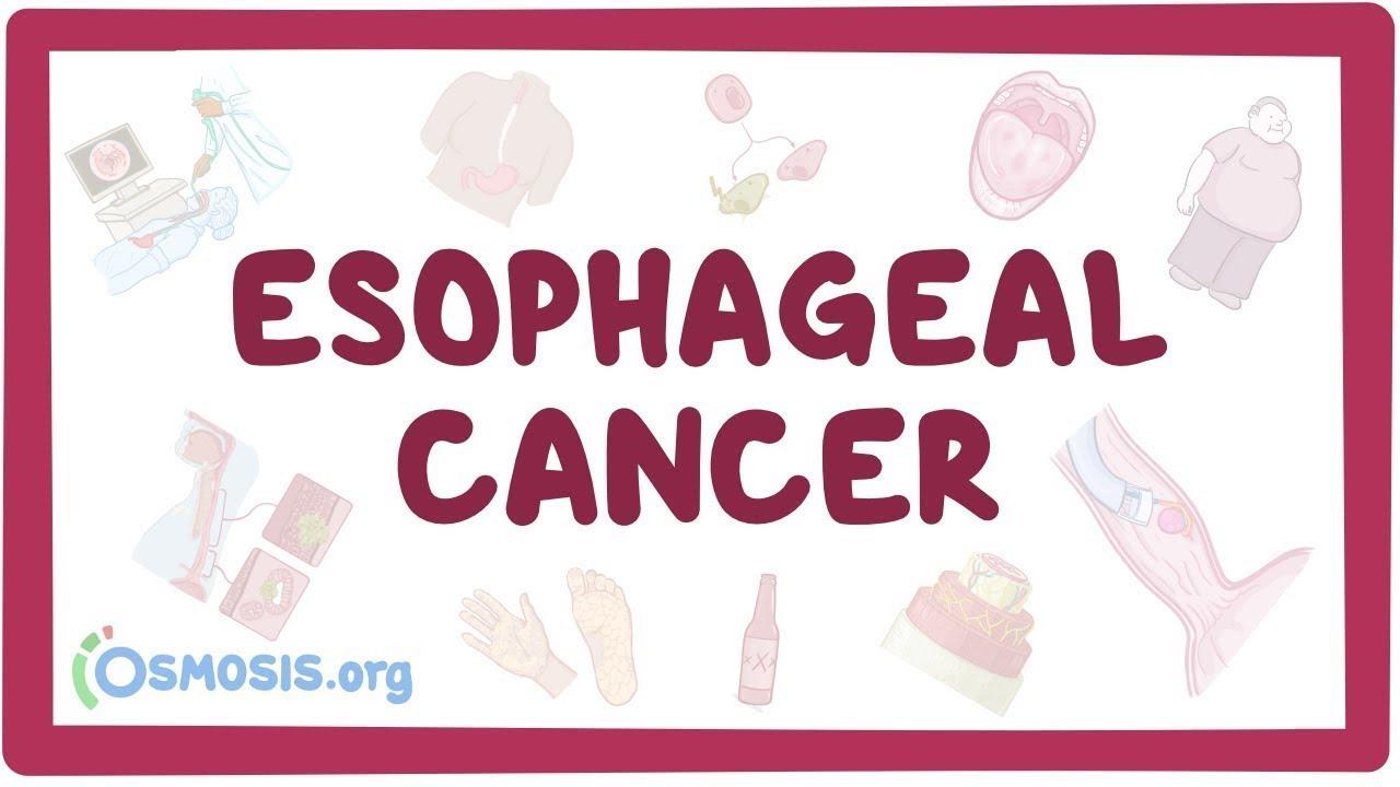 cancer raro sarcoma de ewing papilomul tratamentului esofagului