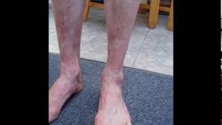 Psoriasis improvements using Inclined Bed Therapy IBT (before and after photographs)