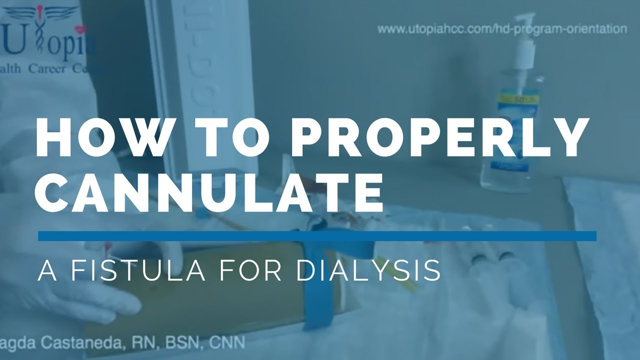 free dialysis training video how to properly cannulate a fistula rh youtube com