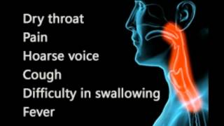 Throat Infection Symptoms