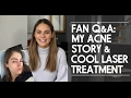 Fan Q&A: My Acne Story & My Cool Laser Treatment