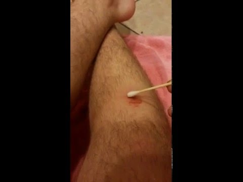 How To Remove Ringworm