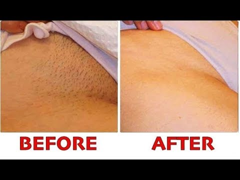 STOP SHAVING ! PROPER WAY TO REMOVE PUBIC HAIR WITHOUT SHAVING! NO INGROWN  HAIR, NO BOILS