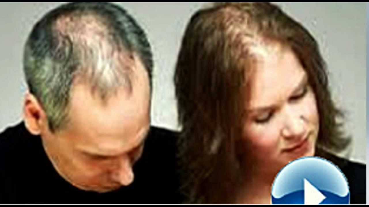 How To Keep Hair From Thinning