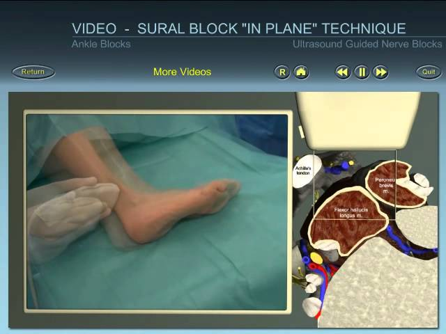 Ankle Block Sural Nerve Ultrasound Guided Block In Plane