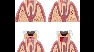 Wurzelbehandlung, tote Zähne und Gifte