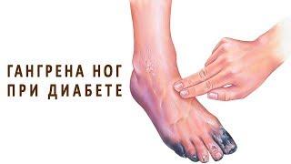 Гангрена ног при сахарном диабете