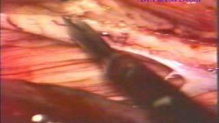 DREZotomy - Dr.Paresh K Doshi