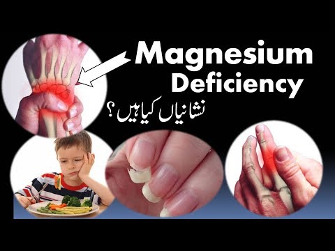 Magnesium Deficiency Treatment | Low Calcium Absorption In Body