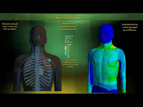 Enabling Medical Device Innovation through Simulation
