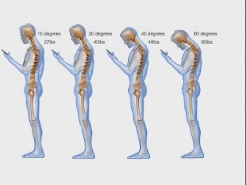 'Text Neck' - Staring at Smartphones and Tablets is DESTROYING Your Neck and Spinal Cord!