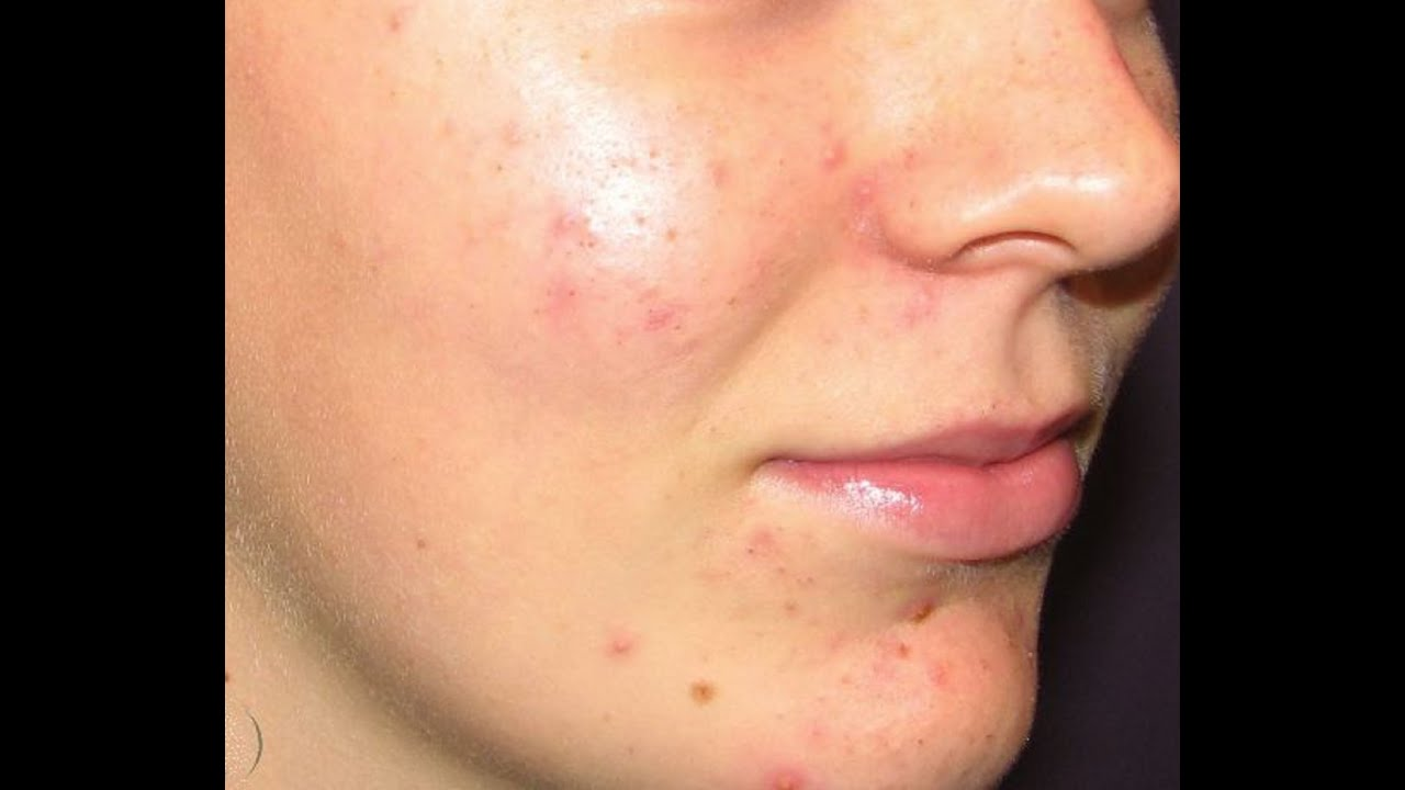 acne acne acne adult care product skin solution