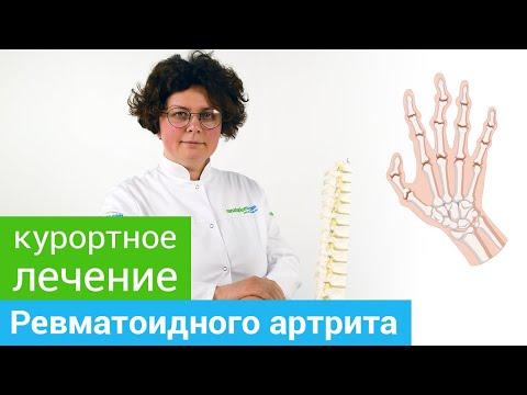 Где и как лечить РЕВМАТОИДНЫЙ АРТРИТ. Методы санаторного лечения РЕВМАТОИДНОГО АРТРИТА