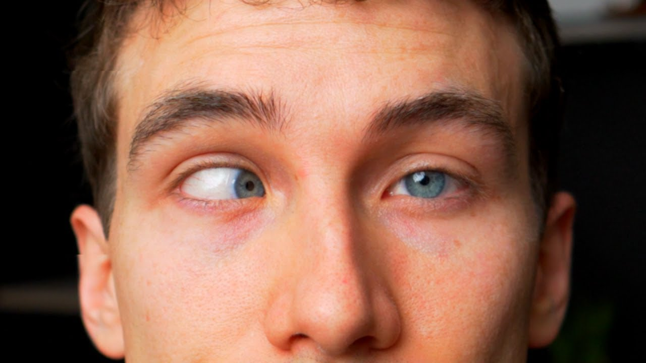 CROSS EYED? What is Strabismus - (Types, Causes, Treatments) Eye Doctor Explains