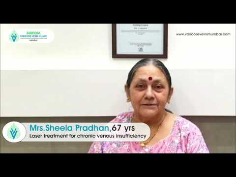 Happy patient testimonial after Laser treatment of Varicose Veins