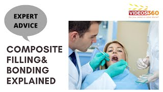 Now Trending - Composite Filling & Bonding for Repairing Teeth by Dr. Carl McMillan