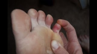 Pinky (5th) Toe Pain - Home Treatment Guide!
