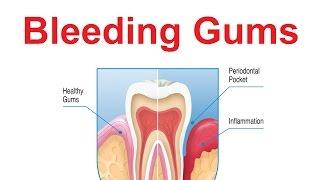 7 Top Reasons of Bleeding Gums