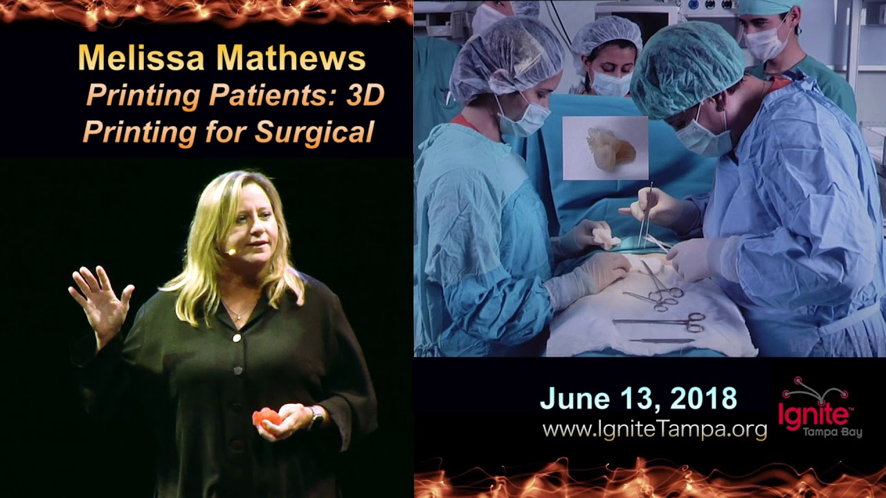 Ignite Tampa Bay 2018: Melissa Mathews - Printing Patients; 3D Printing for Surgical