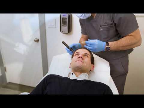 MICRONEEDLING - Alinea Medical Associates