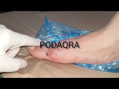 stoc de varicoză foto pe picioare