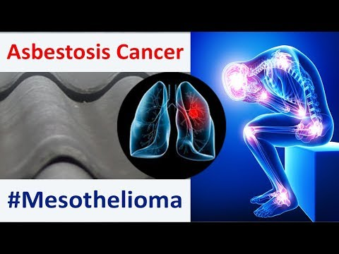 asbestos-cancer-–-main-causes-and-mesothelioma-symptoms-for-this-asbestosis-cancer-disease