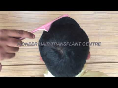 hair restorarion best clinic results  Dr Sreedhar Reddy Pothula.BANGALORE