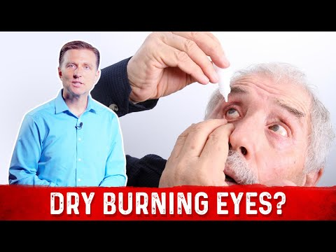 What is Dry Burning Eyes?