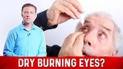 hqdefault - Dry Eyes & Burning Tongue & Acne & Inflammation