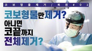 [시우TV] 코보형물제거/복원 01. 콧대보형물만 제거…