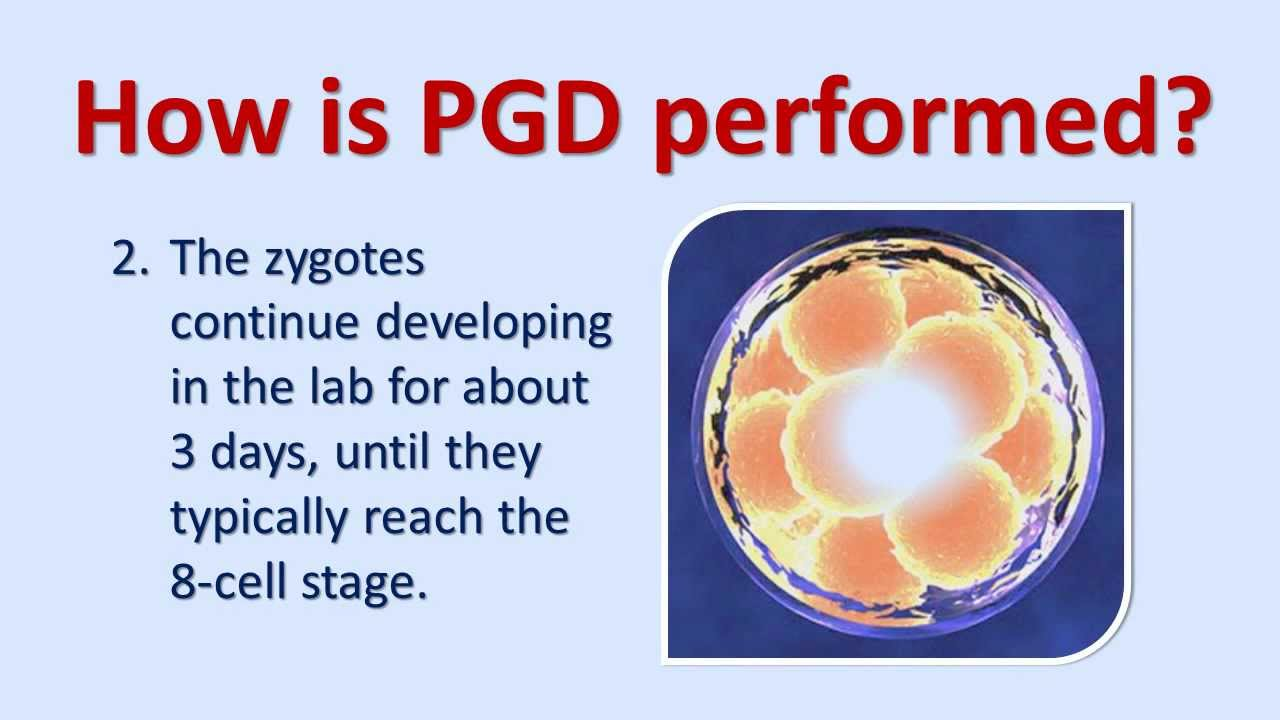 preimplantaion genetic diagnosis There are two types of preimplantation genetic testing:preimplantation genetic diagnosis (pgd)is performed on cell(s) learn how uptodate can help you.