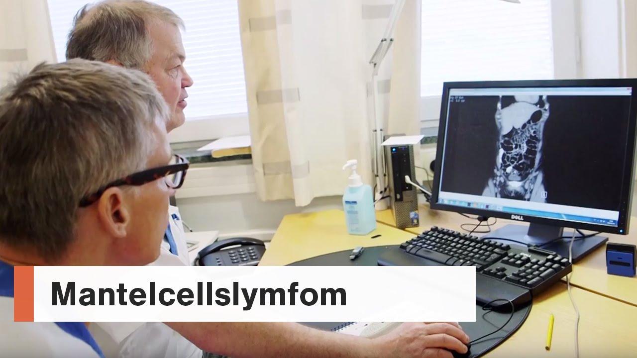 Mantelcellslymfom - 2. Diagnos och symtom